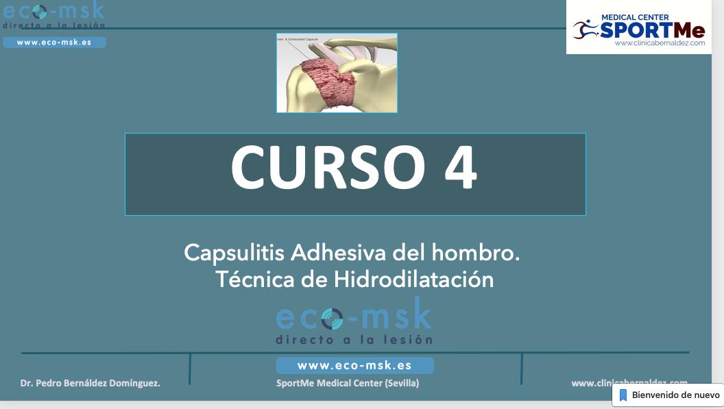 CURSO 4 CAPSULITIS ADHESIVA HIDRODILATACION