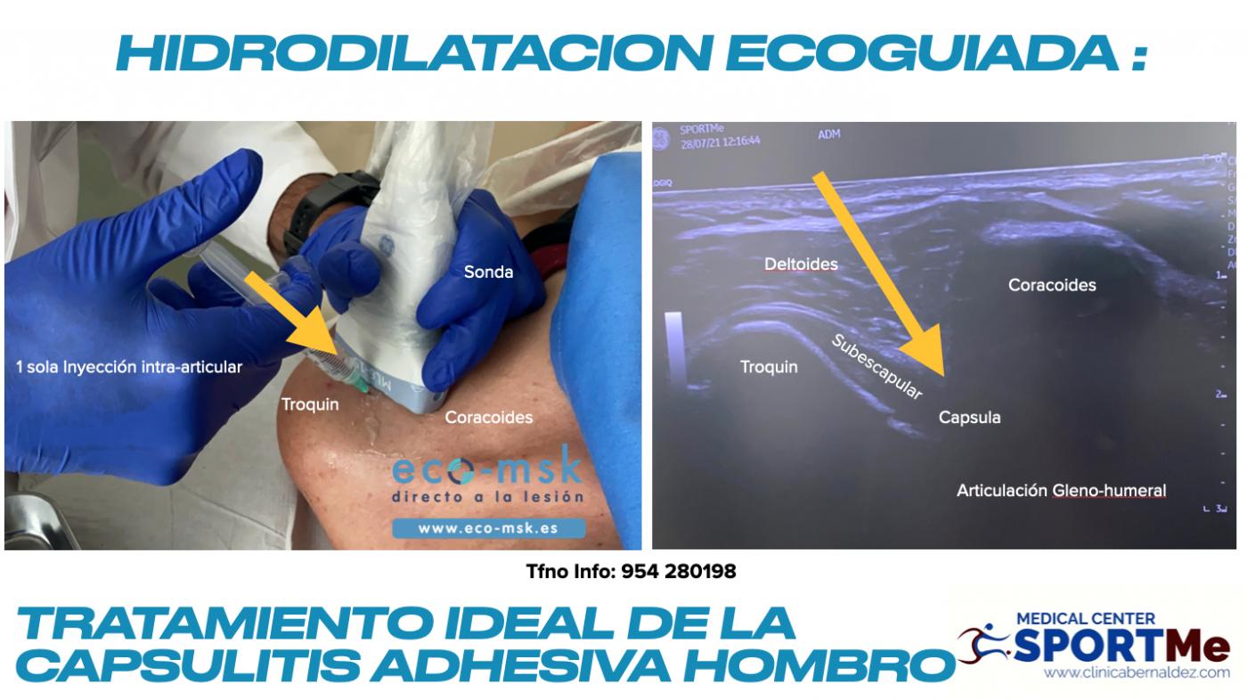 Curso de Hidrodilatación para la Capsulitis adhesiva